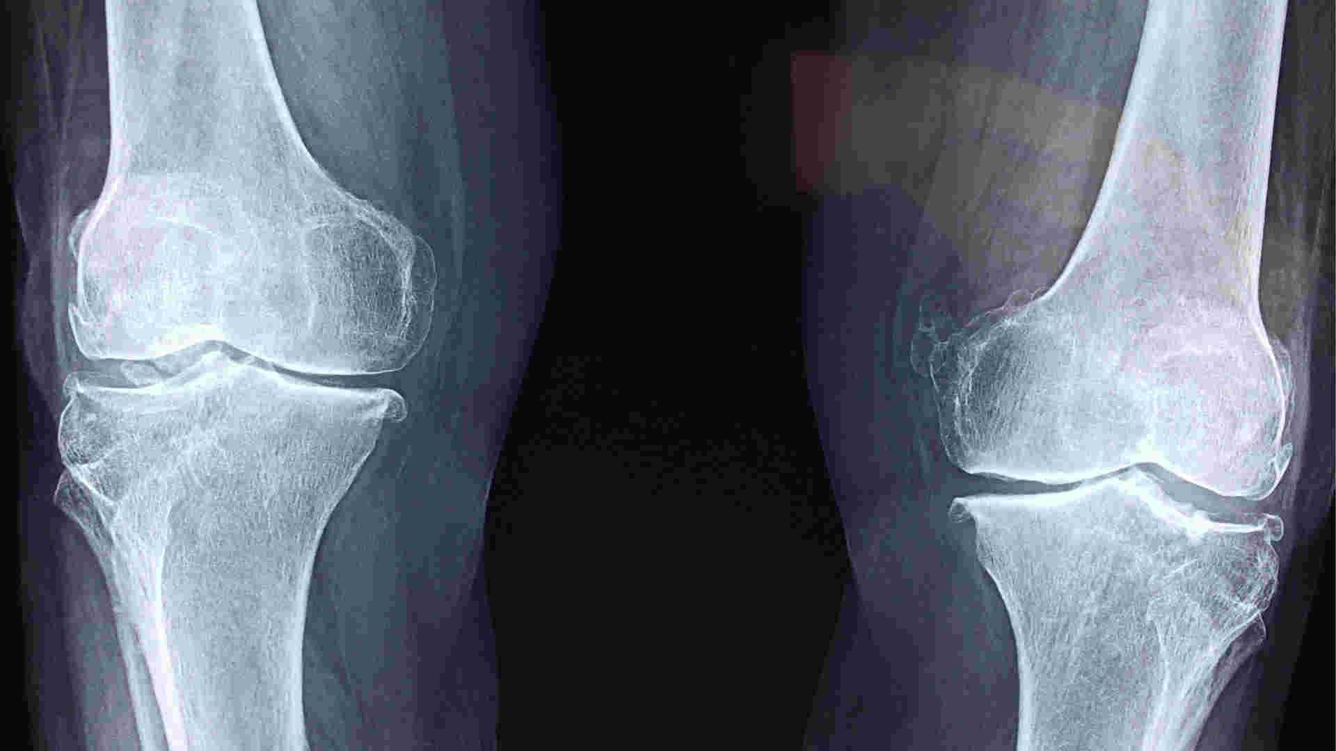 Schmerzensgeld für Tibiagelenkfraktur erhalten